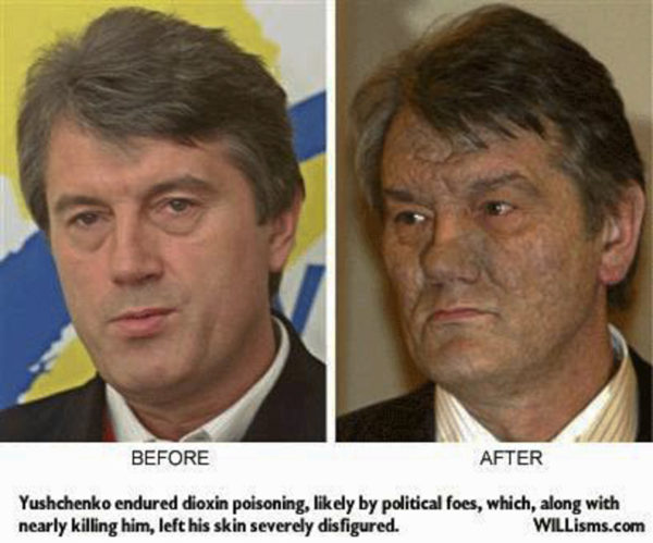 Foto Dioxin Vergiftung befor und after